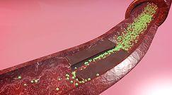 Objawy zablokowanych tętnic