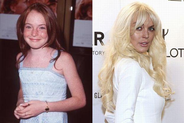 Tak zmieniała się twarz Lindsay! (WIDEO)