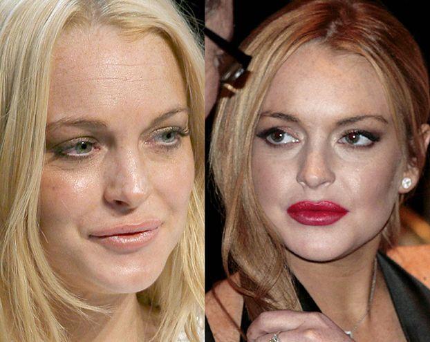 """Lohan: """"Nie miałam powiększanych ust!"""" KŁAMIE?"""