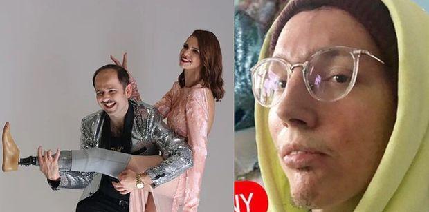 Wojtek Sawicki KRYTYCZNIE o nowym programie, w którym celebryci opiekują się osobami z niepełnosprawnością