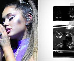 """Ariana Grande pokazała skany swojego mózgu. """"Ona też ma uczucia"""""""