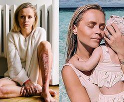 Córka Anny Skury wylała na nią WRZĄTEK. Influencerka pokazała poparzenia (FOTO)