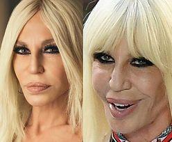 Donatella Versace zaprezentowała nowe usta. JEST LEPIEJ! (FOTO)