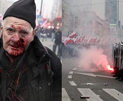 """74-letni fotoreporter """"Tygodnika Solidarność"""" POSTRZELONY gumową kulą na Marszu Niepodległości. Policja: """"Jest nam PRZYKRO"""""""