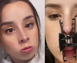 """Zakażona koronawirusem Sylwia Lipka pokazuje zdjęcia ze spinką na nosie i ustach. """"NEVER ENDING STORY"""""""