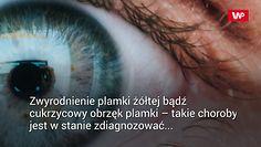 Sztuczna inteligencja zdiagnozuje choroby oczu