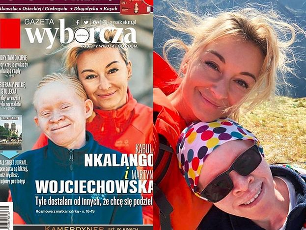 """Wojciechowska pozuje z adoptowaną córką na okładce: """"Maczetą odrąbali mi rękę. Ciało albinosa warte jest 75 TYSIĘCY dolarów"""""""