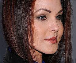 Co zdeformowało twarz Priscilli Presley?!