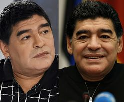 Maradona po OPERACJI PLASTYCZNEJ TWARZY! Poznajecie?