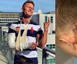 """Łukasz z """"Hotel Paradise"""" został zaatakowany przez INNEGO UCZESTNIKA programu? """"Mój serdeczny kolega uderzył mnie butelką w głowę"""""""