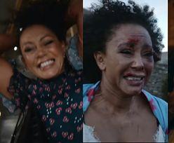 Mel B w MOCNYM filmie o przemocy domowej. Piosenkarka była katowana przez 10 lat małżeństwa z przemocowcem (WIDEO)