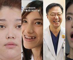 Koreańczycy chwalą się efektami operacji plastycznych... w programie telewizyjnym. Są nie do poznania! (ZDJĘCIA)