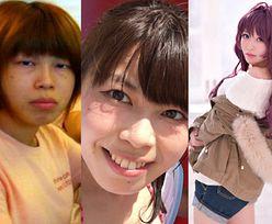 Japonka przeszła totalną metamorfozę dzięki operacjom plastycznym! Tak wyglądała kiedyś... (ZDJĘCIA)