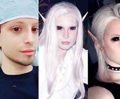 """25-letni """"CZŁOWIEK-ELF"""" zoperował uszy i przeszedł zabieg zmiany kształtu linii włosów... (ZDJĘCIA)"""