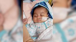 2-miesięczna dziewczynka zaczęła wymiotować krwią. Była bierną palaczką