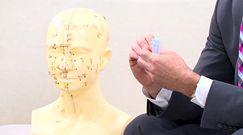 Czy akupunktura przyniesie ulgę przy bólach głowy?