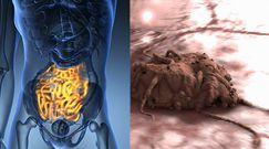 Objawy raka jelita cienkiego