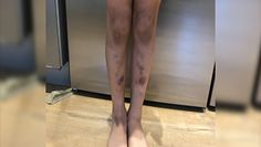 Siniaki na nogach okazały się białaczką