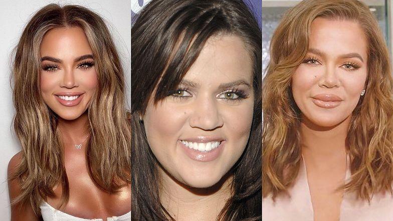 Odmieniona Khloe Kardashian zapewnia, że przeszła TYLKO JEDNĄ operację plastyczną. Wierzycie? (ZDJĘCIA)