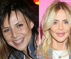 """""""Klub spuchniętej wargi"""": oto gwiazdy i celebrytki, które przyznały się do powiększenia ust (ZDJĘCIA)"""