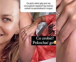 """Anna Lewandowska pokazuje cellulit i radzi, jak sobie z nim poradzić: """"POKOCHAĆ GO""""!"""