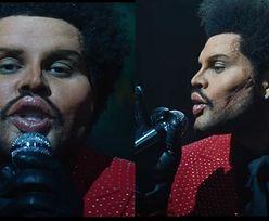 The Weeknd szokuje nowym wcieleniem. Upodobnił się do ofiary chirurgii plastycznej (WIDEO)