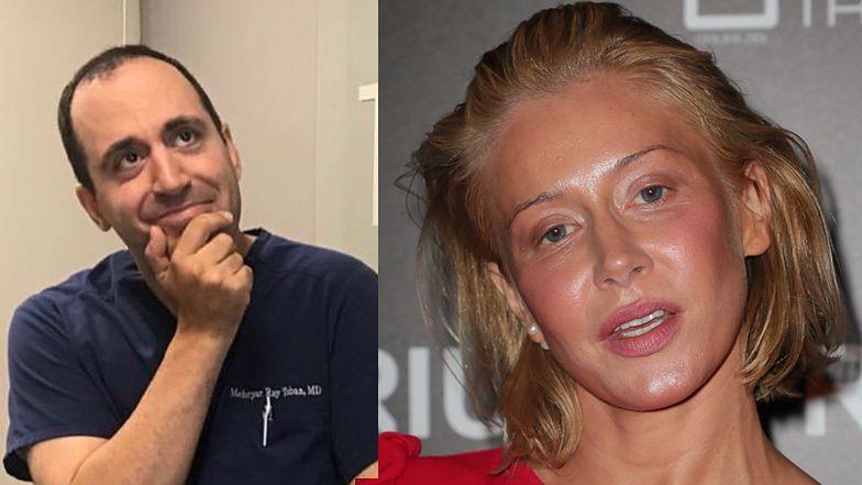 """Chirurg plastyczny z Kalifornii krytykuje wygląd Katarzyny Warnke: """"Oto jak NIE należy tego robić!"""""""