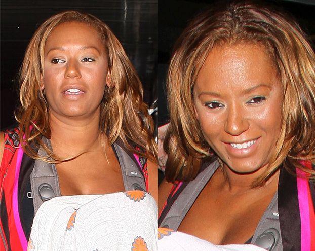 Co się stało z twarzą Mel B?! (FOTO)