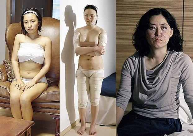 """Tak operują się Koreanki, żeby wyglądać bardziej """"zachodnio"""" (ZDJĘCIA)"""