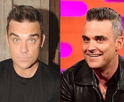 """Robbie Williams wyznaje, że ingerował w wygląd: """"Nie mogłem, ku*wa, ruszyć czołem!"""""""
