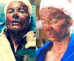Co stało się z Magdaleną Cielecką?! (FOTO)