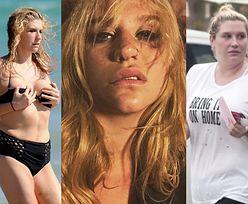 """Kesha o anoreksji i bulimii: """"W najgorszych momentach mojego życia słyszałam, że najlepiej wyglądam"""""""