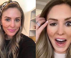 """Influencerka OSZPECONA po nieudanym botoksie: """"Wyglądam jak Dwie Twarze!"""""""