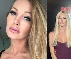 """Roxi Gąska wydała 25 tysięcy na """"nowe"""" zęby i zdradziła, jak wyglądają jej relacje z byłym chłopakiem"""