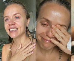 """Zapłakana Anna Skura relacjonuje ze szpitala: """"Przeszłam POWAŻNĄ OPERACJĘ. Nie będę wyglądać tak samo"""" (ZDJĘCIA)"""