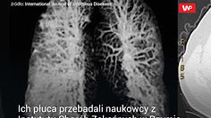 Co koronawirus robi z płucami.  Wstrząsające zdjęcia włoskich lekarzy