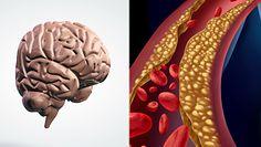 Cholesterol a mózg. Zobacz, jak na niego wpływa