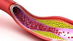 Wysoki cholesterol i jego wpływ na wygląd skóry
