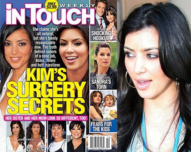 Kim Kardashian miała operację plastyczną?!
