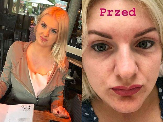 """Uczestniczka programu """"Projekt Lady"""" pokazała zdjęcie po operacji nosa: """"Młodziej z nowym noskiem?"""""""