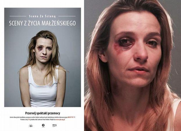 POBITA KORONIEWSKA w kampanii społecznej!