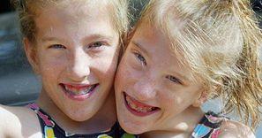 Najsłynniejsze bliźniaczki syjamskie skończyły 31 lat. Jak dziś wygląda ich życie? (ZDJĘCIA)