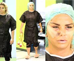 Zmasakrowana twarz Katie Price straszy po TRZECIEJ serii operacji plastycznych (FOTO)