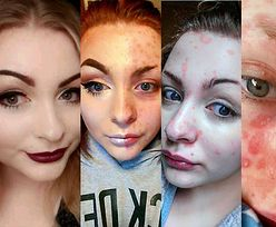 Makijażystka z Instagrama przyznała, że ukrywała łuszczycę! (FOTO)