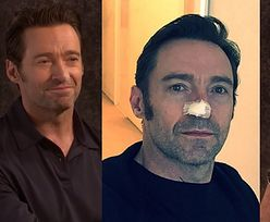 """Hugh Jackman o raku skóry: """"To normalne dla Australijczyka w moim wieku"""""""