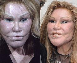 """""""Kobieta-kot"""" ogłasza w wywiadzie: """"Nigdy nie miałam operacji plastycznych!"""""""