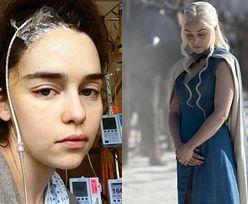 """Emilia Clarke ma kompleksy po operacjach mózgu. """"Nie chciałam patrzeć na swoją twarz"""""""