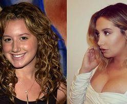 """Ashley Tisdale wspomina operację nosa i żali się po latach: """"Nieustannie sprawiano, że czułam się źle"""""""