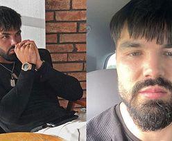 """TYLKO NA PUDELKU: Kosmetolog odpowiada na oskarżenia Pawła Tyburskiego: """"Jest osobą UZALEŻNIONĄ od zabiegów. To nie twarz zaczęła mu się zapadać, TYLKO PSYCHIKA"""""""
