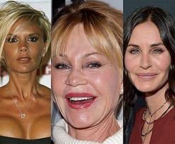 Te znane osoby ŻAŁUJĄ operacji plastycznych! (ZDJĘCIA)